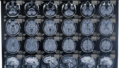 Мрт головного мозга детям сколько стоит thumbnail